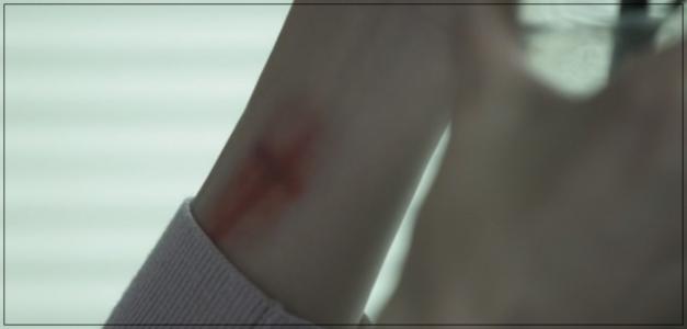 リカ(ドラマ)の左腕のあざの理由は?いつから?原作の順番から考察